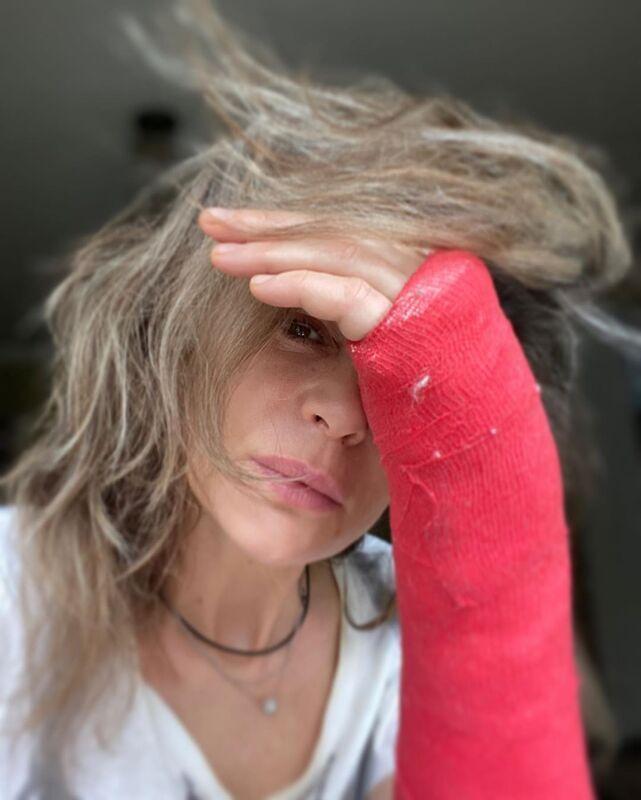 52-летняя Оксана Фандера травмировала руку