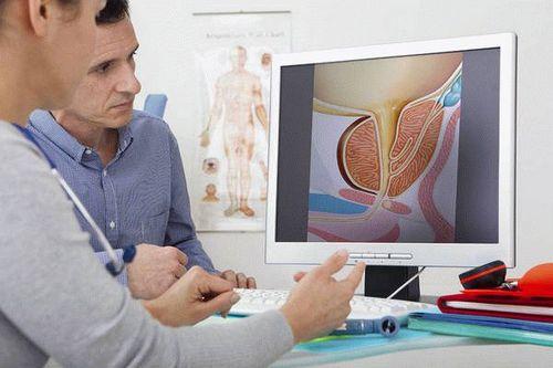 Фиброз простаты у мужчин симптомы и лечение