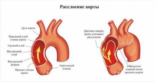 Аневризма аорты симптомы и лечение