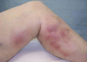 Красные пятна на ногах при варикозе фото и лечение, лечение варикоза ног и сосудов