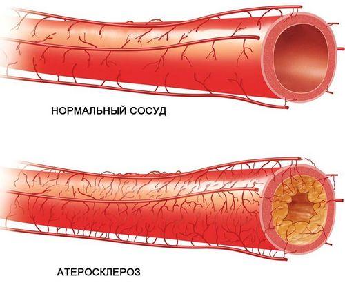 Уздг бца что это такое, где сделать расшифровка показаний исследования артерий
