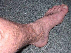 Как лечить варикоз у мужчин на ногах