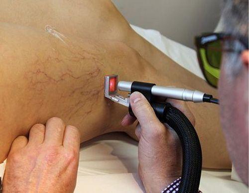Лечение варикоза вен на ногах лазером, цена операции и отзывы